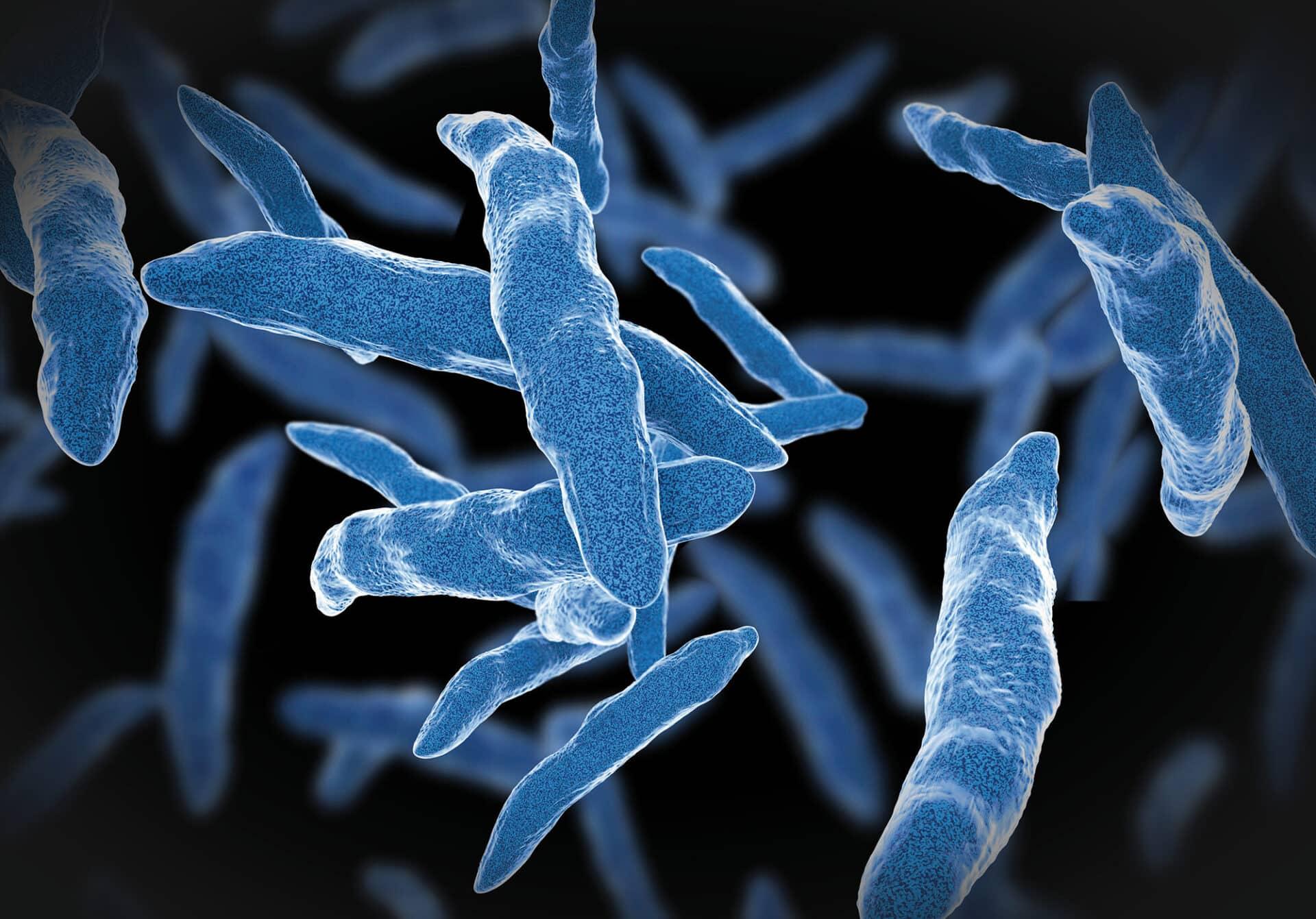 Fokus Infektionskrankheiten: TBC und andere längst nicht ausgerottete Infektionen